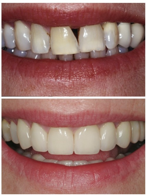 Before and after dental work to fix a gap in teeth