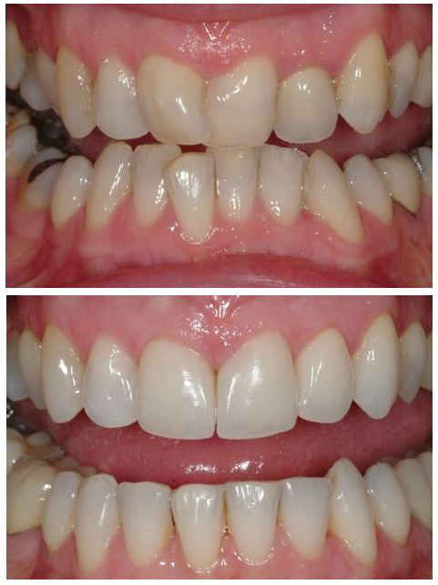 Before and after image of orthodonic work to straighten crooked teeth