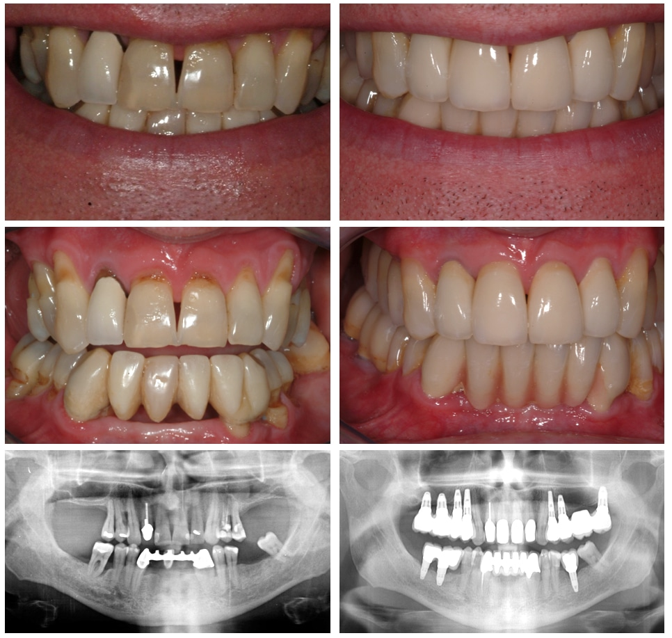 Dental bridge work - before and after including x-rays