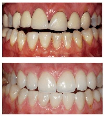 Aesthetic-Dentistry