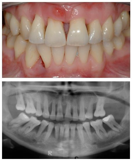 Bone-loss-in-teeth