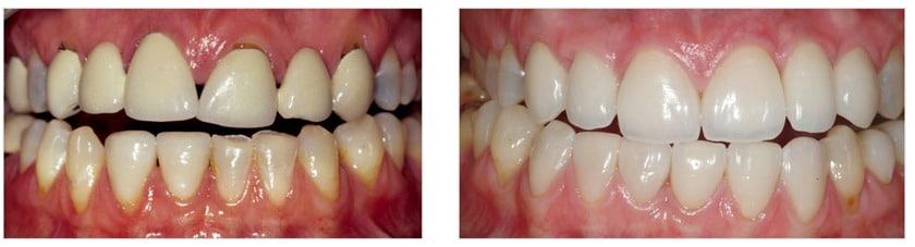 Dental-Implants-crowns-veneers1