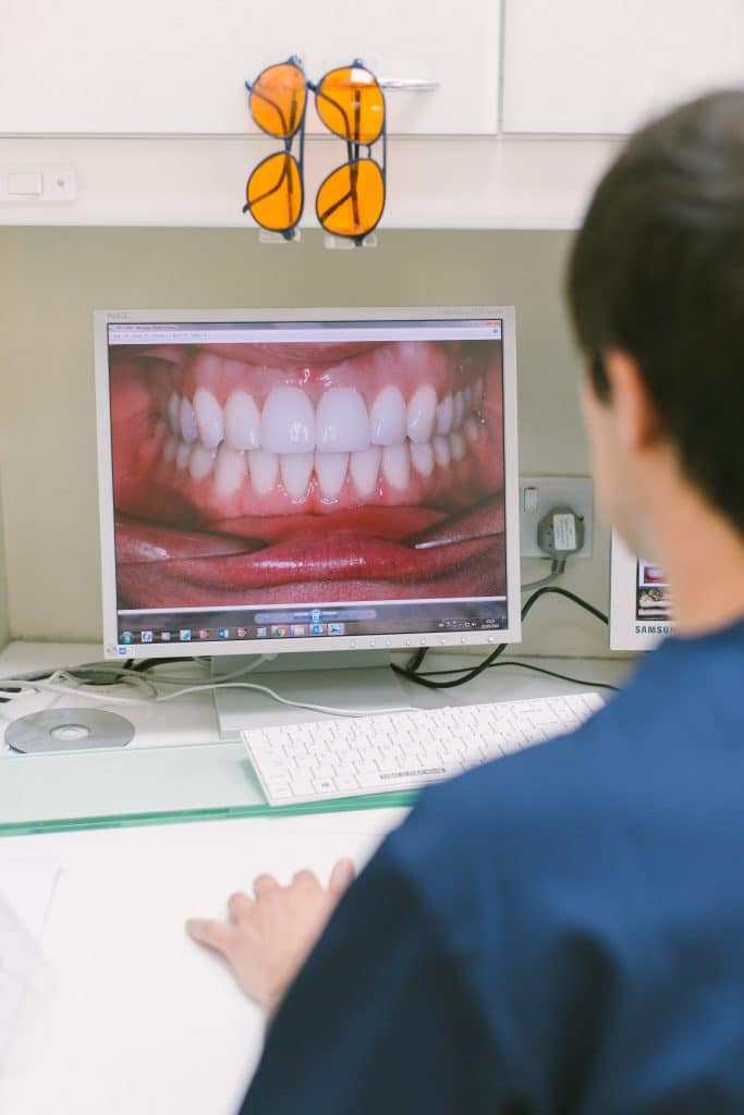 Dentist viewing smile makeover on screen